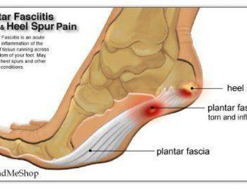 Heel Spur/Plantar Fasciitis – Shockwave Therapy