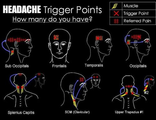 Trigger Point Headaches Relieved with Dry Needling