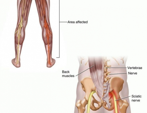 Is My Pain Sciatica or Something Else?