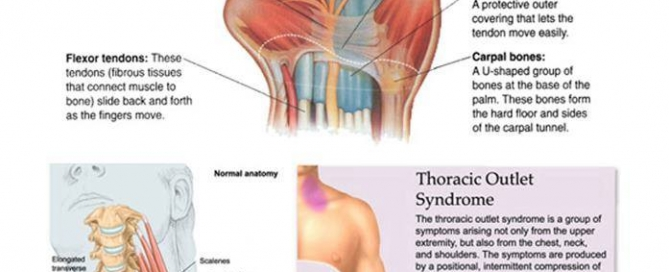 carpel tunnel and shoulder impingement