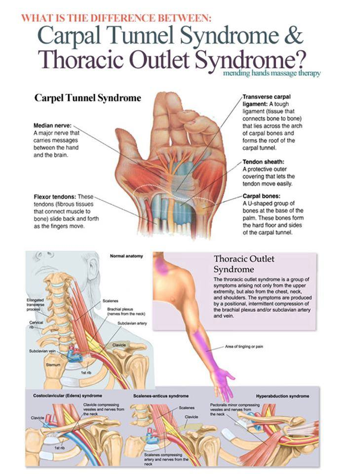 carpel tunnel and shoulder impingement