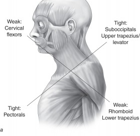 upper cross syndrome 2
