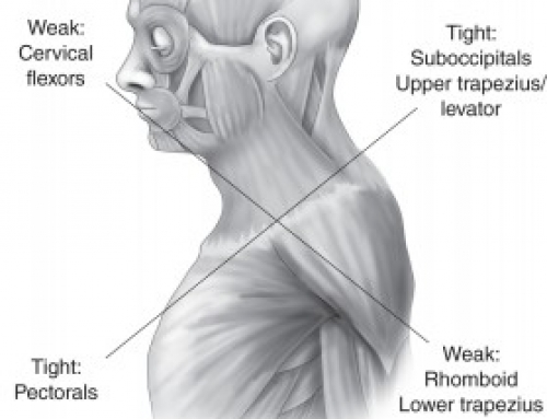 Upper Cross Syndrome-neck and shoulder pain