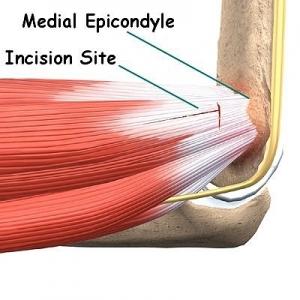 Golfers Elbow/medial Epicondylitis